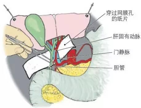 肝脏生理解剖结构_图4.24 肝十二指肠韧带内的解剖结构.图中的纸片穿过网膜孔