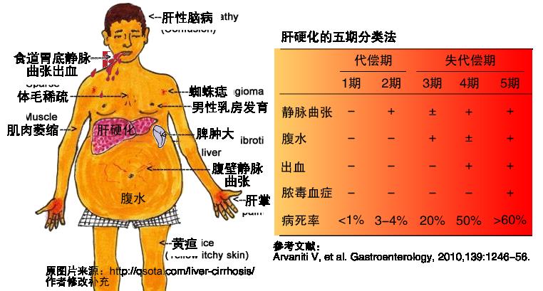 如何区分代偿期肝硬化和失代偿期肝硬化?