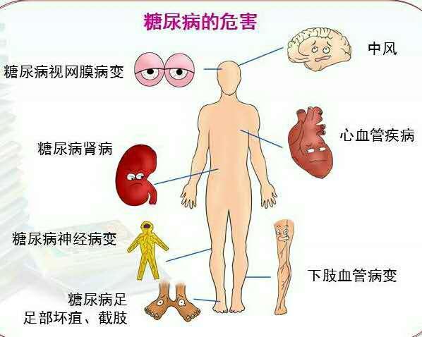 颈动脉硬化_动脉硬化的症状