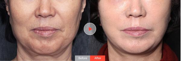 面部蛋白线提升怎样?PST面部埋线提升疗效显著让你炫出蝶变的幸福人生   PST面部提升不仅使皮肤、肌肉、脂肪紧致上扬,同时可以在你最想解决的部位骨膜下选择性的植入固定系统,加大面部韧带的数量和力量。固定系统一年左右自动吸收形成自体组织韧带更好的巩固提升效果,由里而外解决面部松弛下垂问题,好技术和好材料的完美结合,整个拉升效果更加安全明显有效。   美丽咨询热线:400-668-1995   北京西方瑞丽尚品整形医地址:北京市朝阳区三里屯SOHO5号商场127号(6号商场对面)   添加李晓东教授