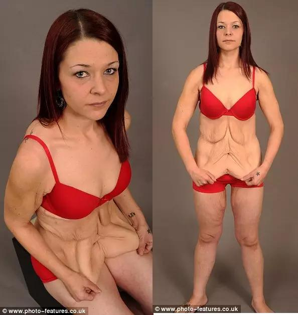 减肥成功后皮肤松弛图片
