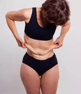 减肥后皮肤松弛图片