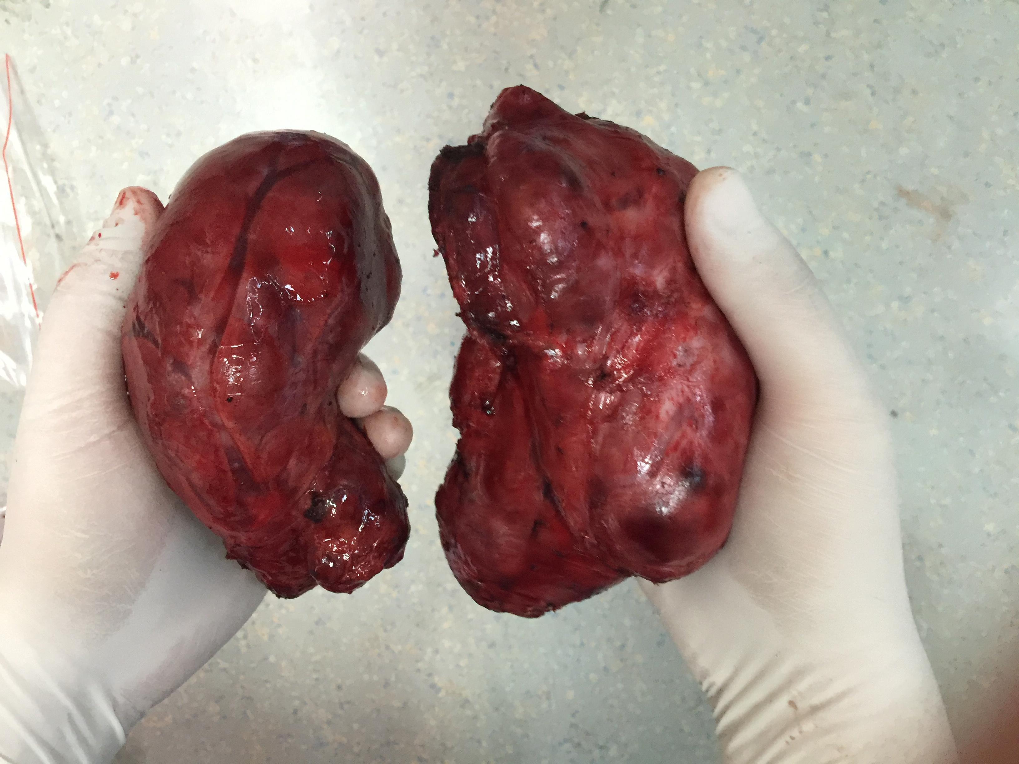 甲状腺结节图片