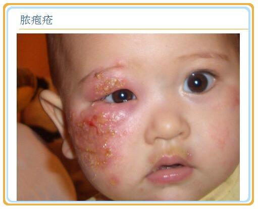 母婴 正文  手足口病的患儿手上脚上有水泡,口腔周围有溃疡,重型的