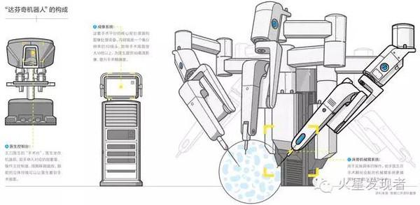 """""""抛弃""""医生也能做手术?达芬奇机器人并不这么认为图片"""