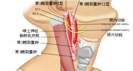 颈部淋巴结结节该如何治疗