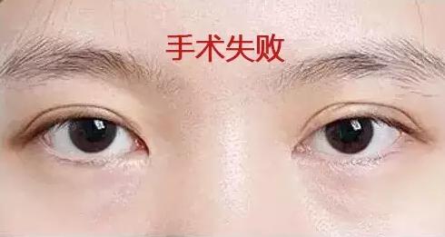 双眼皮手术意外失败怎么办