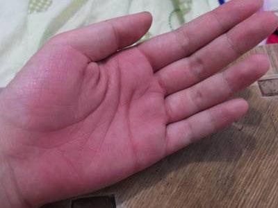 手掌心有红点-很多人都有的 厚血 症,一分钟测试下图片