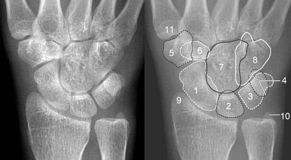 腕关节脱位及X线阅片技巧