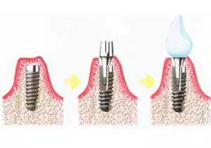 什么是种植牙,想种牙,这些种植牙知识你应该懂!