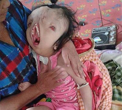 心力憔悴-女孩先天脸部畸形,慎人 产前孕检竟没有查出