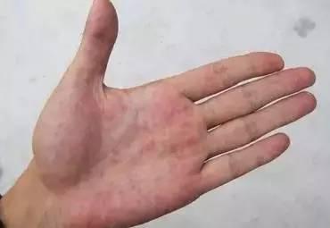 """手掌发红,这很可能是""""厚血症""""的征兆图片"""
