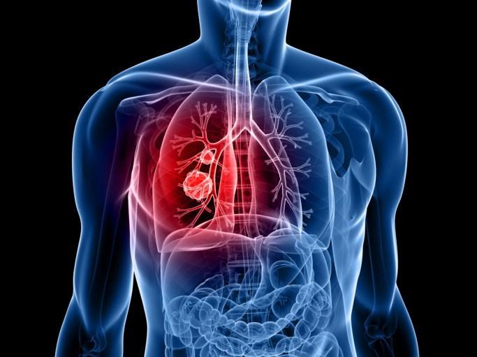 肺癌赶潮流,缠上年轻人