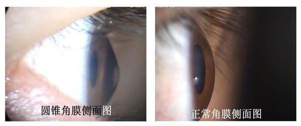 圆锥角膜可以治疗吗