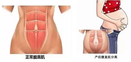 盆底肌图片-产后下面变松,这些方法拯救你