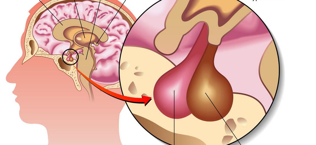 手术是脑垂体瘤患者的主要治疗手段