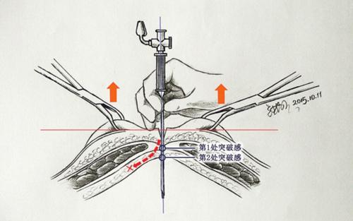 """""""——他可以把人体局部解剖图,手术操作步骤都用手绘图一点点画出来"""