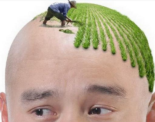 植发领域的谣言,你被哪个骗过?
