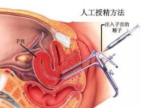 实拍人工受精过程图片