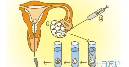 高龄女性做试管婴儿的准备事项
