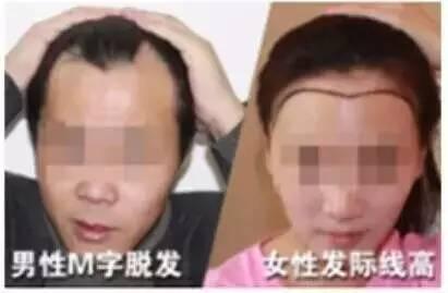 大面积脱发人群 头发稀疏的人们 典型的发际线秃的人 由于疤痕而导致图片
