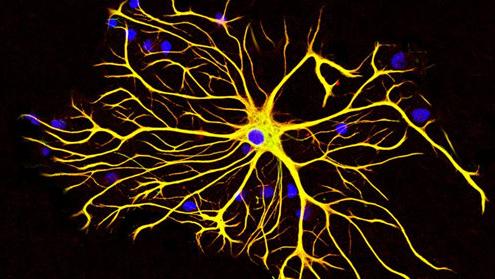 大脑神经元 结构
