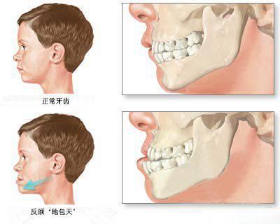 孩子牙齿不齐,换牙前还是换牙后矫正呢