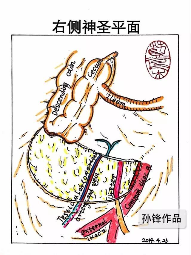 图(1):手术示意图(声明:本图仅为参考图,以原作者手术设计为准)   尾侧入路法的主要步骤   (一)肠系膜上静(动)脉后方、胰头十二指肠前方的游离(由尾侧向头侧):   暴露小肠系膜根与后腹膜愈着形成的黄白交界线,切开腹膜,进入Toldts间隙(右结肠后间隙),充分暴露胰头、十二指肠、SMV/SMA及其右则部分属支的后方,并清扫相应淋巴结,显露范围右侧至生殖血管,左侧至SMV/SMA左侧,上侧至十二指肠球部。   (二)肠系膜上静(动)脉及其右侧属支的解剖与相应淋巴结的清扫(由尾侧向头侧):