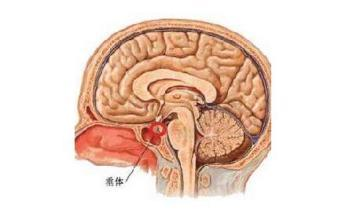 头疼为垂体瘤患者首个临床表现