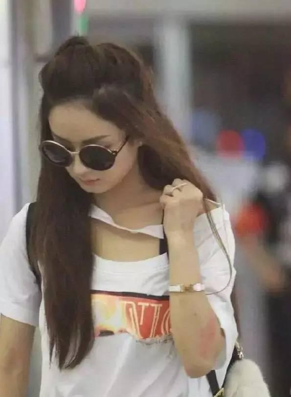 部惊现淤青_随后出现在机场的赵丽颖,手部明显可见淤青和伤痕.