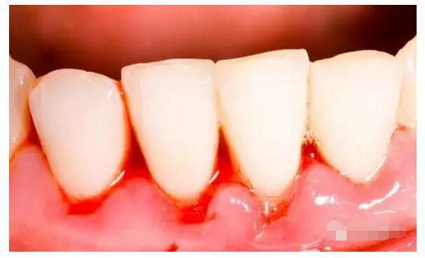 高烧致牙龈组织的血管结构发生改变