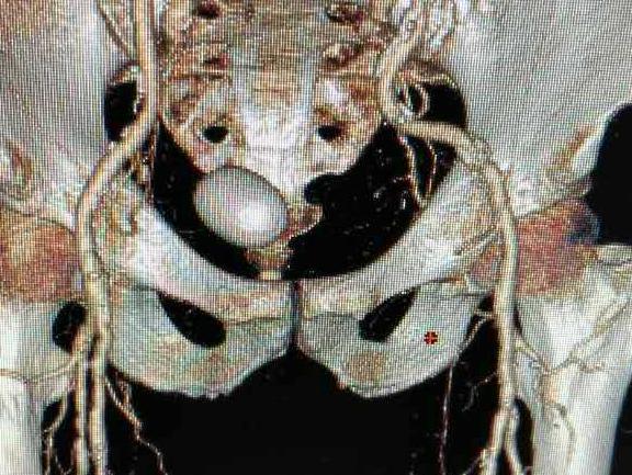 六旬老汉排尿不畅,却非前列腺增生,CT有发现!