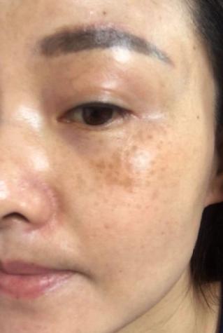 脸颊的肌肤出现黄褐斑是什么原因?
