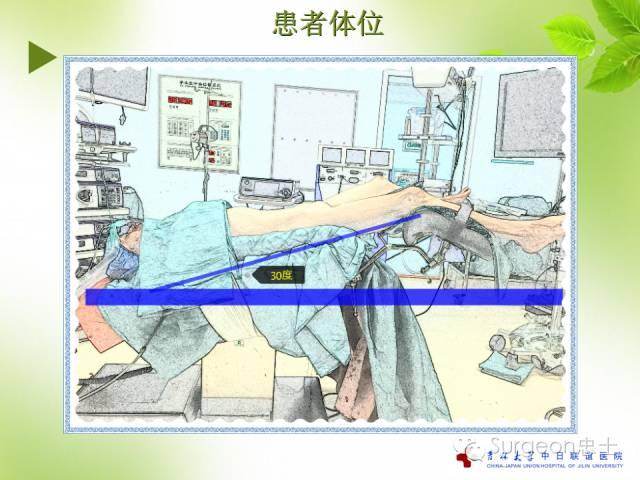 蜡纸|腹腔镜下直肠手术v蜡纸配合?看这里!如何用脱毛干货图片