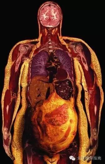 他们解剖了一个胖子,看完还有什么理由不 减 肥
