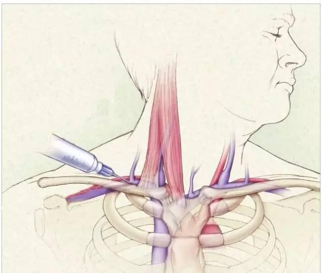 细说锁骨下静脉穿刺置管术