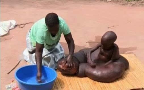 非洲8岁男童患怪病腿长1.5米 下半身形如蟒蛇