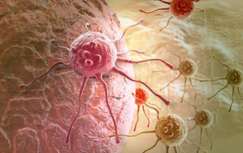 一招处理癌细胞死灰复燃(深度分析)
