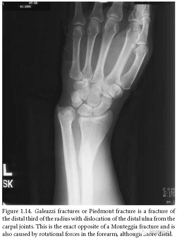 肘关节及前臂平片 临床影像示例