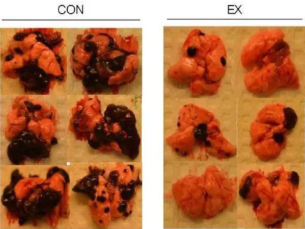 左边是不运动的对照组的肺,右边 对照组小鼠肺部肿瘤无论是体积还图片