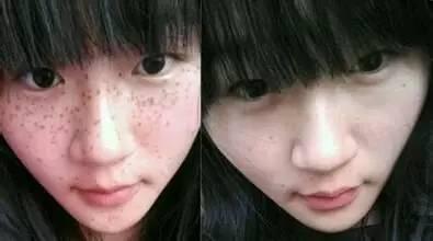 女人脸上长斑的后果不可想象,你该觉悟了
