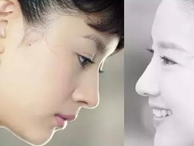因为鼻子往往决定侧脸的形状,一般正面好看的人侧面不一定好看,但是侧