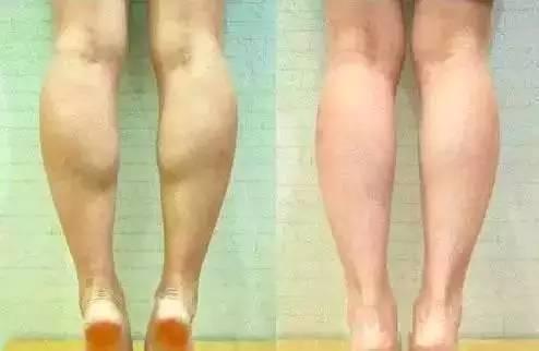 打瘦腿针术后如何保养