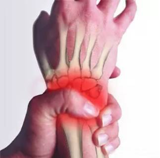 手腕伤,你有吗 这里有最全面的手腕损伤及防护小妙招在羽毛球运动