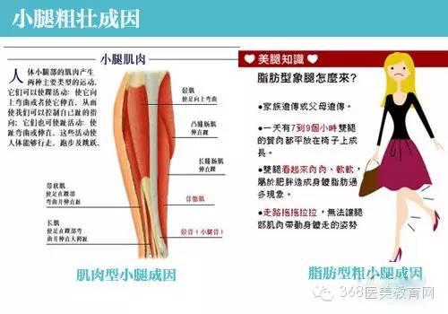 瘦腿瘦身之前要知道:你的腿属于脂肪型或是肌没天大便4减肥图片