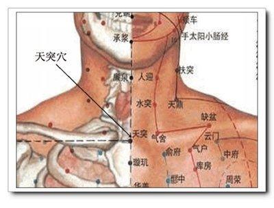 咽炎的原理_化橘红治疗咽炎咳嗽的原理