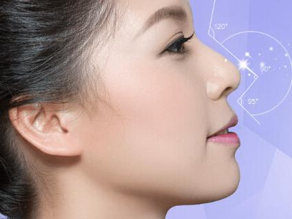 线雕隆鼻 让鼻子更立体图片