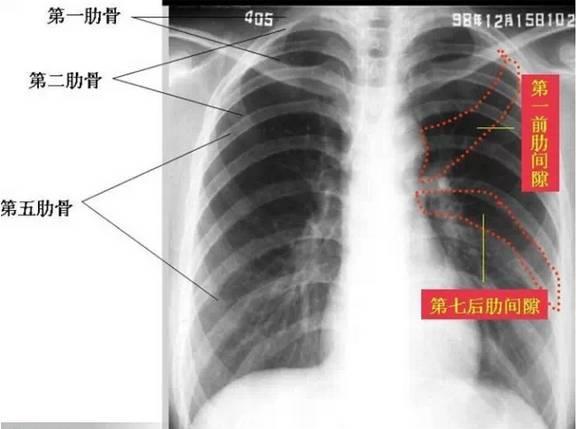 骨折x光片图片