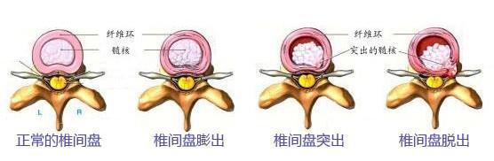 如何才能根治腰椎间盘突出