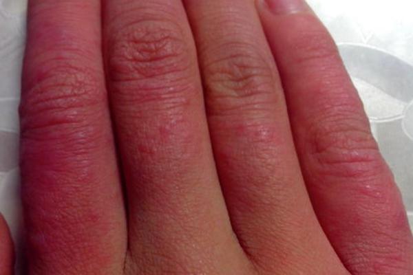 冻疮常见于冬季,由于气候寒冷引起的局部皮肤反复红斑,肿胀,严重者可
